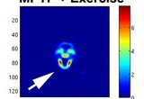 PET imaging of mouse striatum using 18-F fallypride ligand for dopamine D2 receptor. Mouse was lesioned with MPTP neurotoxin and exercised for 6 weeks prior to imaging.