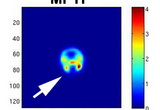 PET imaging of mouse striatum using 18-F fallypride ligand for dopamine D2 receptor. Mouse was lesioned with MPTP neurotoxin.