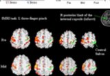 Neruorehabilitation and Neural Repair: Brain behavior correlates in Stroke Rehabilitation. Evolution of motor cortical activation, changes in the laterality index (LI) of primary motor cortex (M1) and mean Wolf Motor Function Test (mWMFT) across time in two patients, (A) and (B, see next research image). (A) Activation in the M1 became focused across time resulting from bilateral reduction in activation, but more so in contralesional (53 to 30 to 12 voxels) than in ipsilesional M1 (134 to 100 to 76 voxels). Consequently, there was a continuous increase in LI (from 0.43 to 0.53 to 0.73) associated with a substantial behavioral gain.