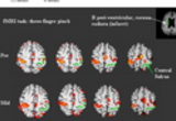 Neruorehabilitation and Neural Repair: Brain behavior correlates in Stroke Rehabilitation. Evolution of motor cortical activation, changes in the laterality index (LI) of primary motor cortex (M1) and mean Wolf Motor Function Test (mWMFT) across time in two patients, (A, see previous research image) and (B). (B) Patient 1 showed a significant decrease in LI of M1 from pre- (0.25) to mid- (0.6) intervention resulting from a reduction in ipsilesional M1 activation (from 72 to 55 voxels). The shift of LI toward the opposite direction midway through therapy correlated with minimal behavioral gain. For more information see Dong, et al, 2006.