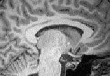 Dr. Kutch's Brain.