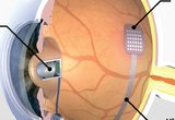 Intraocular retinal prosthesis with internally mounted (intraocular) camera, showing the intraocular camera, a multichip module package for conversion of camera signals to biological stimuli, an ultra-flexible ribbon cable, and a multielectrode array proximity coupled to the retina.  The diagram is an illustration of a top view of the right eye, with the ultra-flexible ribbon cable routed in the opposite hemisphere for clarity of illustration.