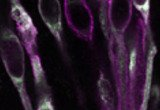 Expression of the TRPM5 ion channel in taste cells (unpublished). Taste buds from mouse circumvallate papillae were labeled with anti-TRPM5 (purple) and anti-PLCb2 (green) antibodies. Co-localization is shown in white.
