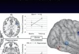 Increased functional connectivity between key cognitive regions for executive function and memory after a 12-week donepezil intervention in individuals with mild cognitive impairment.