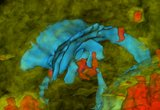 3D model of a human brain affected by traumatic brain injury (TBI). The cerebrum is translucent whilst the ventricles are blue. Areas affected by hemorrhage are drawn in red; they are surrounded by edematous areas (green). These models generated using multimodal neuroimaging allow one to quantify neuroanatomic pathology and to relate it to clinical outcome and deficits.