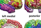 Automatic parcellation of the cerebral cortex obtained from magnetic resonance imaging subsequent to tissue classification. The surface of each lobe is drawn using a different color scheme, and a different color is used for each gyrus and sulcus.